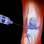 injecting knee