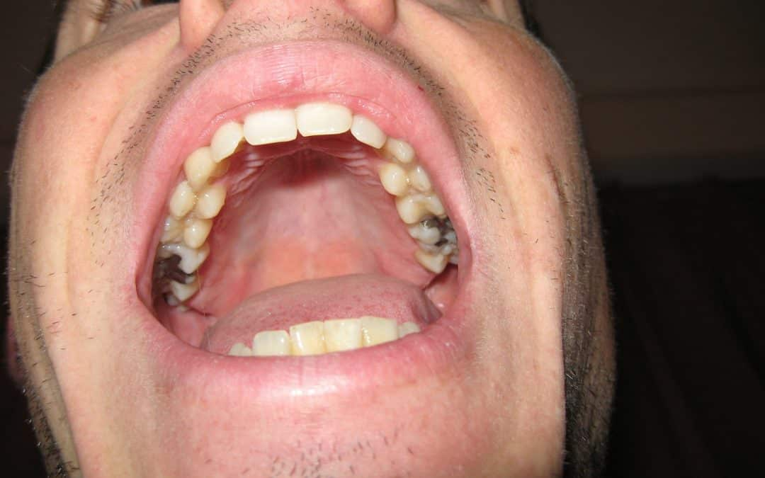 Three Dental Conditions That Can Impact Whole Body Health