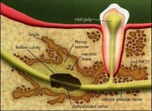diagram of cavitations